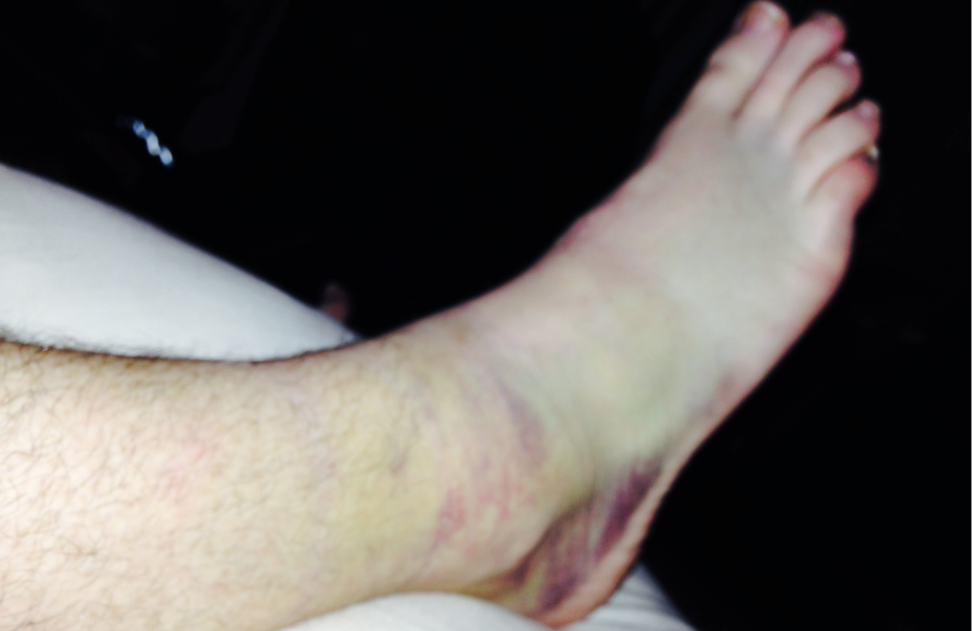 Yes You Can Walk Around Vegas With A Fractured Ankle For 39.5 Hours. Ask Me How!
