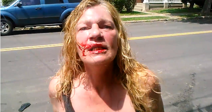 A Pants-Free Lady Named Roxanne Dominates Frankford Street Fight